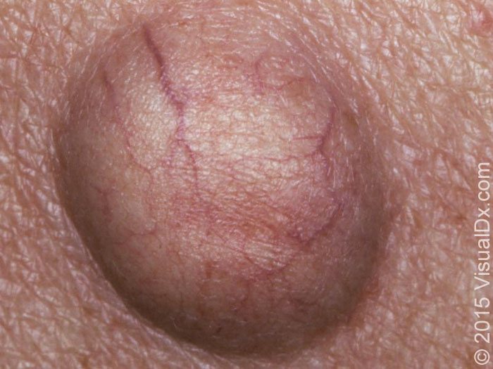 Bumps on Skin: Skin Mysteries Explained | The Healthy