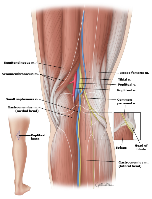 Lower limb distal femoral fractures and dislocations of the knee joint can cause injury to nerves and blood vessels that travel through the popliteal fossa including ccuart Choice Image