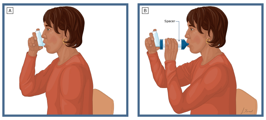 Patient education: Asthma inhaler techniques in adults
