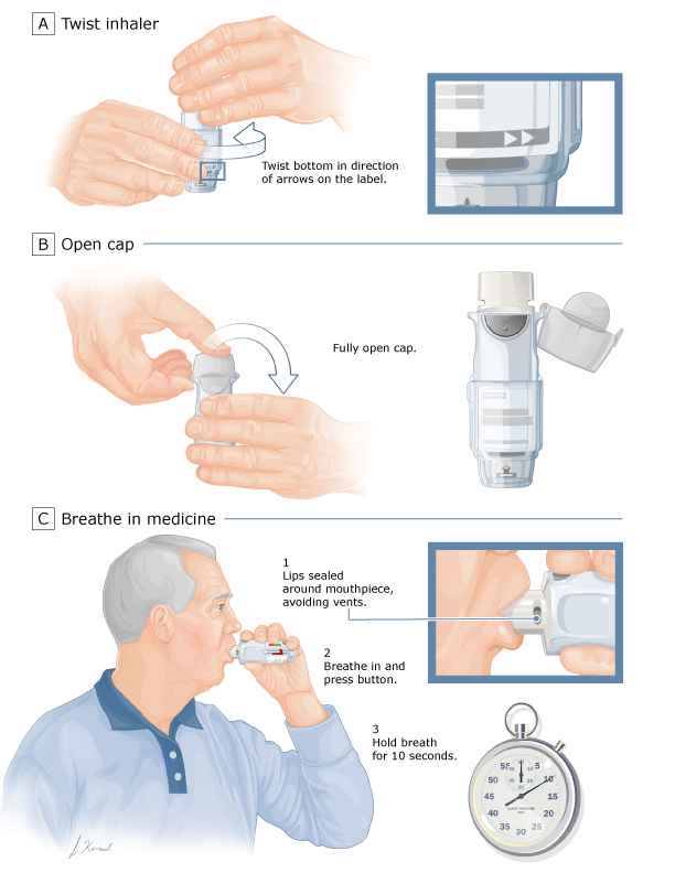 Patient Education Inhaler Techniques In Adults Beyond The Basics