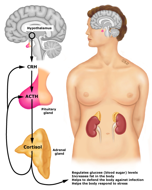 Patient education: Adrenal insufficiency (Addison's disease) (Beyond the  Basics) - UpToDate