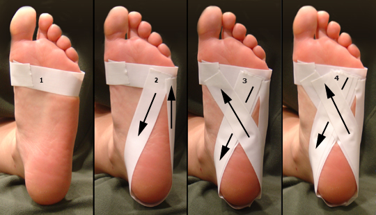 Heel and foot pain (caused by plantar