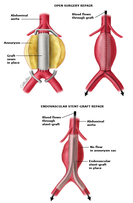 Patient education: Abdominal aortic aneurysm (Beyond the Basics ...