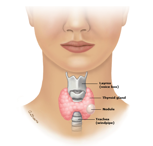 Patient Education Thyroid Nodules Beyond The Basics Uptodate