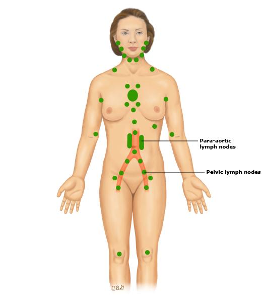 Patient education: Cervical cancer treatment