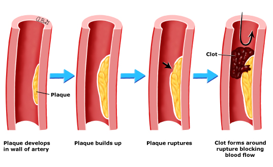 Patient education: Coronary artery bypass graft surgery